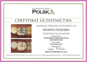 Olimpia-Olejarka-Wypełnienia-w-zębach-bocznych
