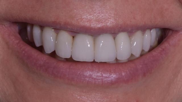 Stomatologia Danuta Borczyk Pani Malgosia po Prywatny stomatolog Jarosław | kompleksowe leczenie zębów | Implanty zębów