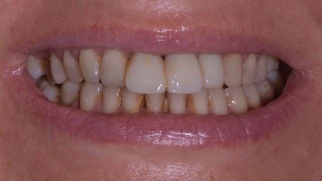 Stomatologia Danuta Borczyk Pani Malgosia przed Prywatny stomatolog Jarosław | kompleksowe leczenie zębów | Implanty zębów