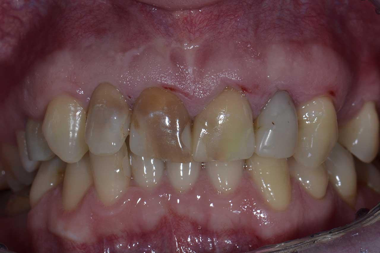 Novadent Jaroslaw Pan Wieslaw przed Prywatny stomatolog Jarosław | kompleksowe leczenie zębów | Implanty zębów