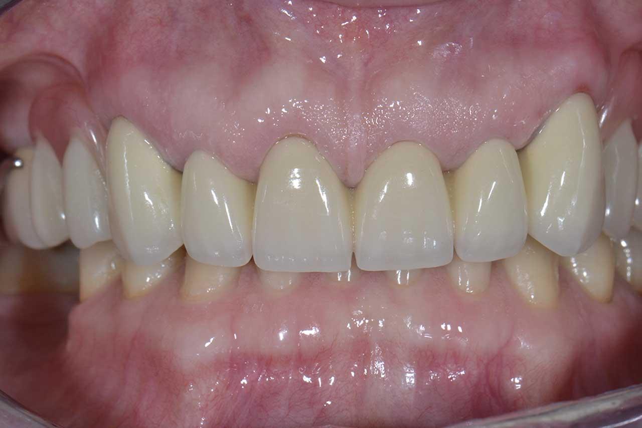 Novadent Jaroslaw Pani Barbara 2 po Prywatny stomatolog Jarosław | kompleksowe leczenie zębów | Implanty zębów