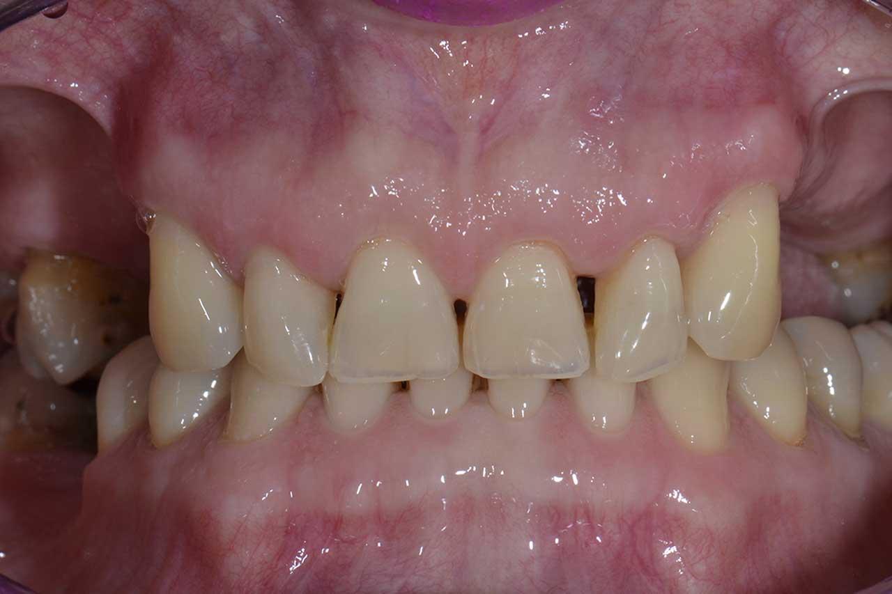 Novadent Jaroslaw Pani Barbara 2 przed Prywatny stomatolog Jarosław | kompleksowe leczenie zębów | Implanty zębów