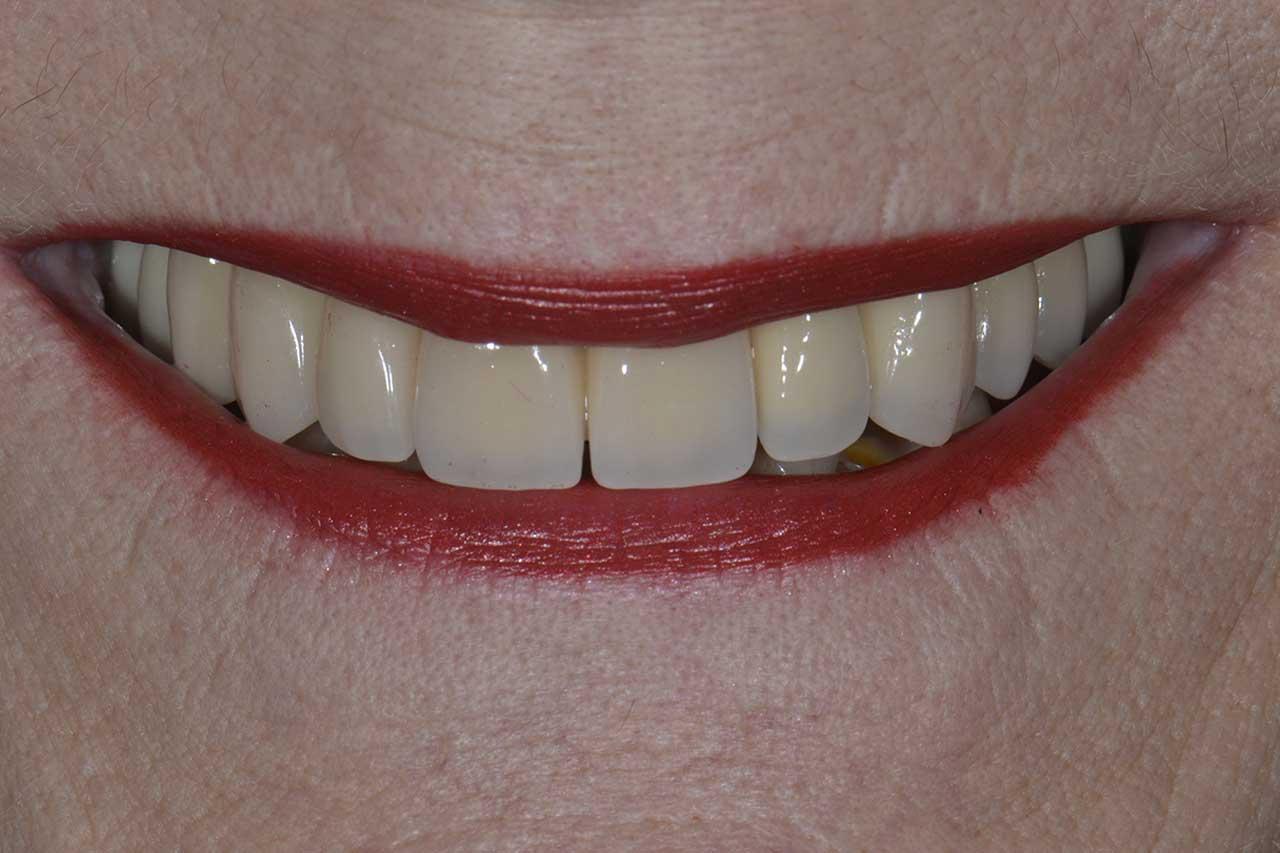 Novadent Jaroslaw Pani Barbara po Prywatny stomatolog Jarosław | kompleksowe leczenie zębów | Implanty zębów