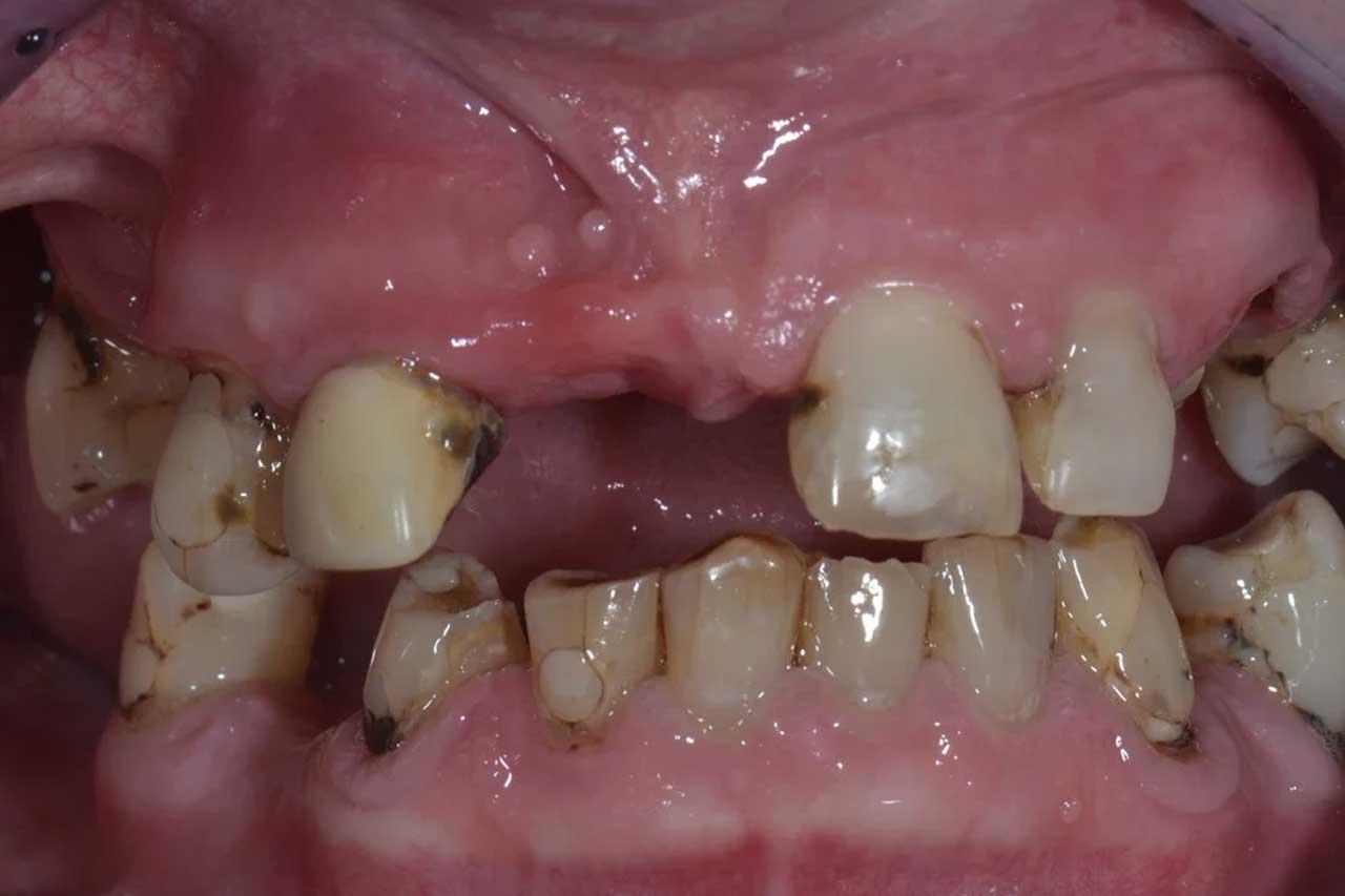 Novadent Jaroslaw Pani Dorota przed Prywatny stomatolog Jarosław | kompleksowe leczenie zębów | Implanty zębów