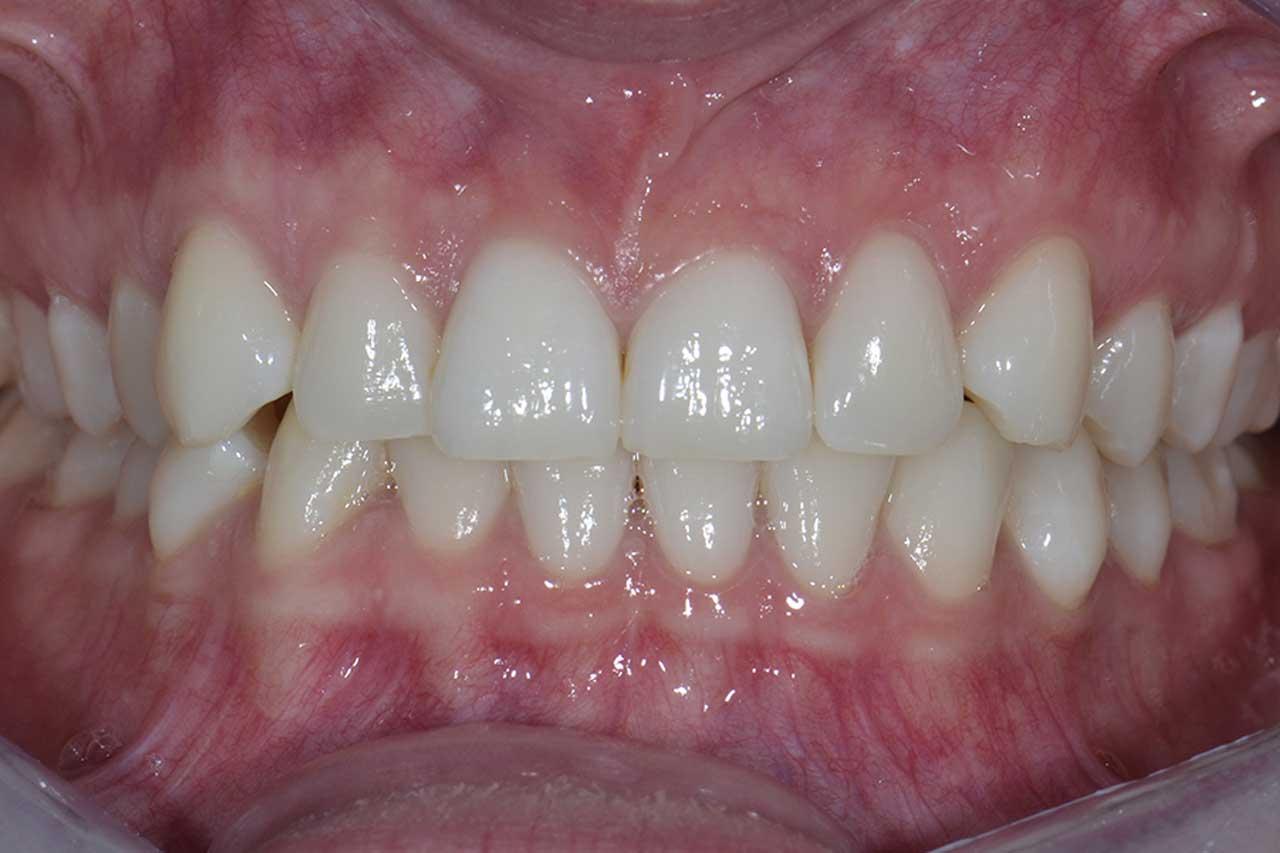 Novadent Jaroslaw Pani Katarzyna po Prywatny stomatolog Jarosław | kompleksowe leczenie zębów | Implanty zębów