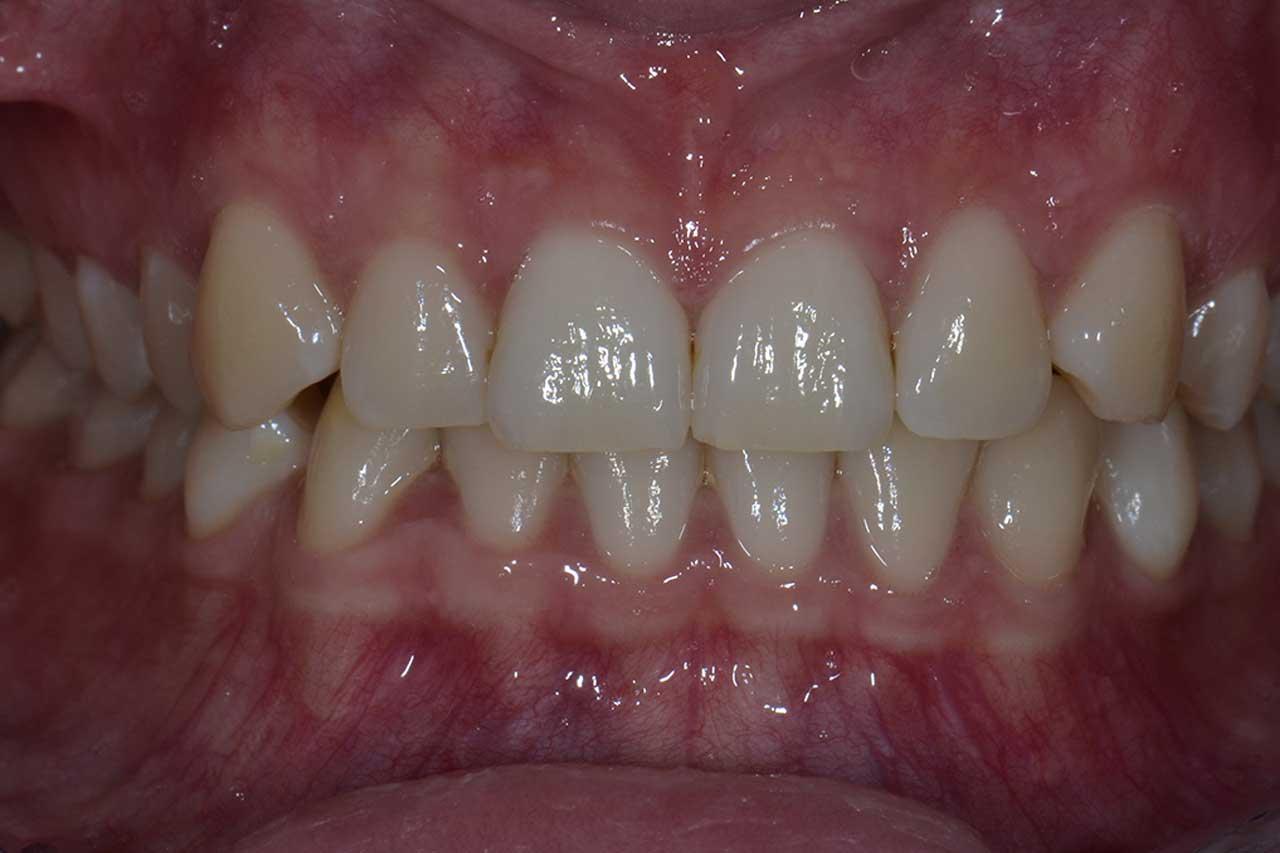 Novadent Jaroslaw Pani Katarzyna przed Prywatny stomatolog Jarosław | kompleksowe leczenie zębów | Implanty zębów