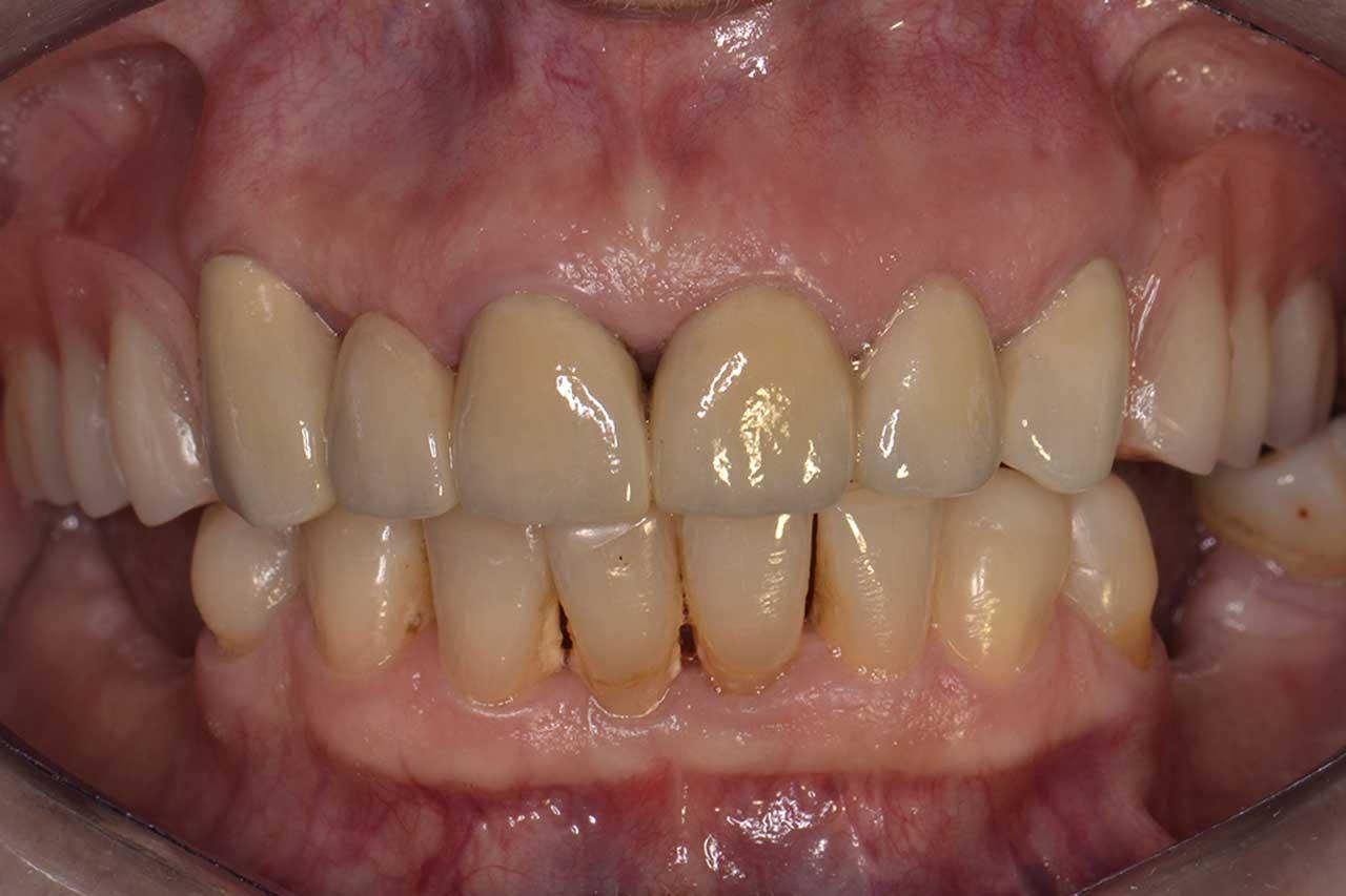 Novadent Jaroslaw Pani Krystyna po Prywatny stomatolog Jarosław | kompleksowe leczenie zębów | Implanty zębów