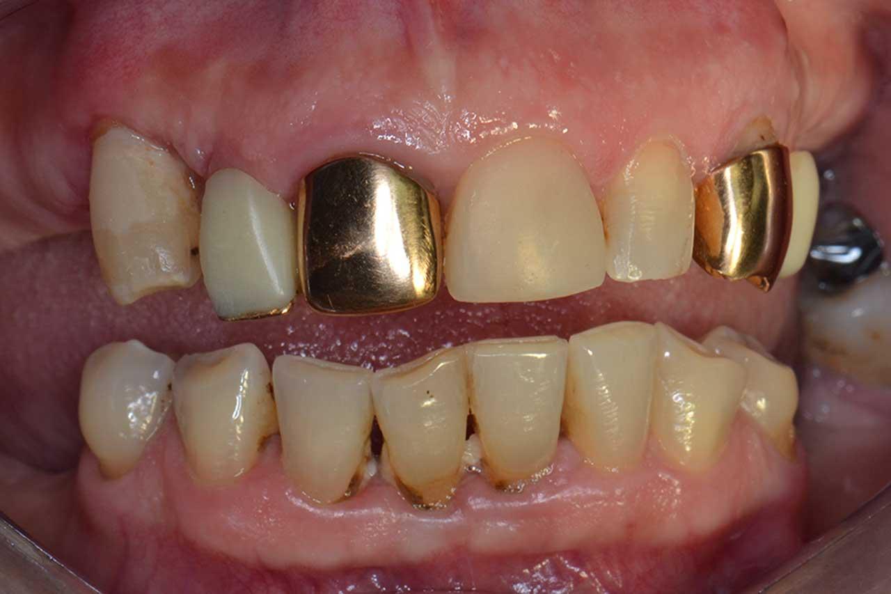 Novadent Jaroslaw Pani Krystyna przed Prywatny stomatolog Jarosław | kompleksowe leczenie zębów | Implanty zębów
