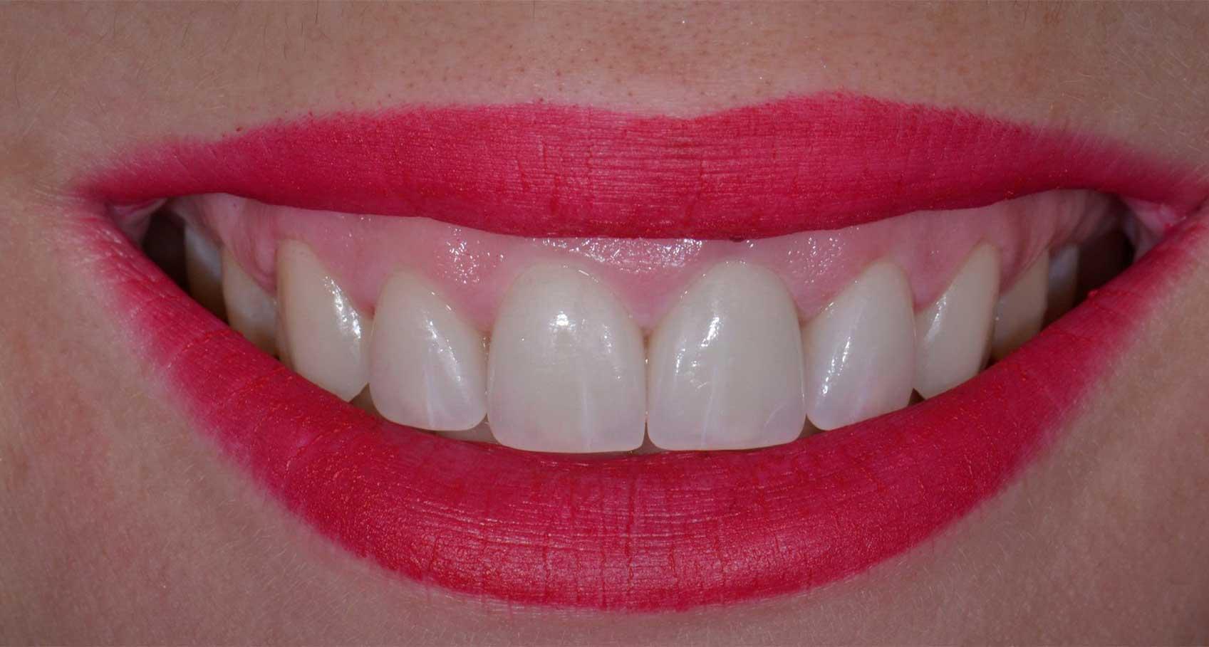 Novadent Jaroslaw Pani Paulina po Prywatny stomatolog Jarosław | kompleksowe leczenie zębów | Implanty zębów