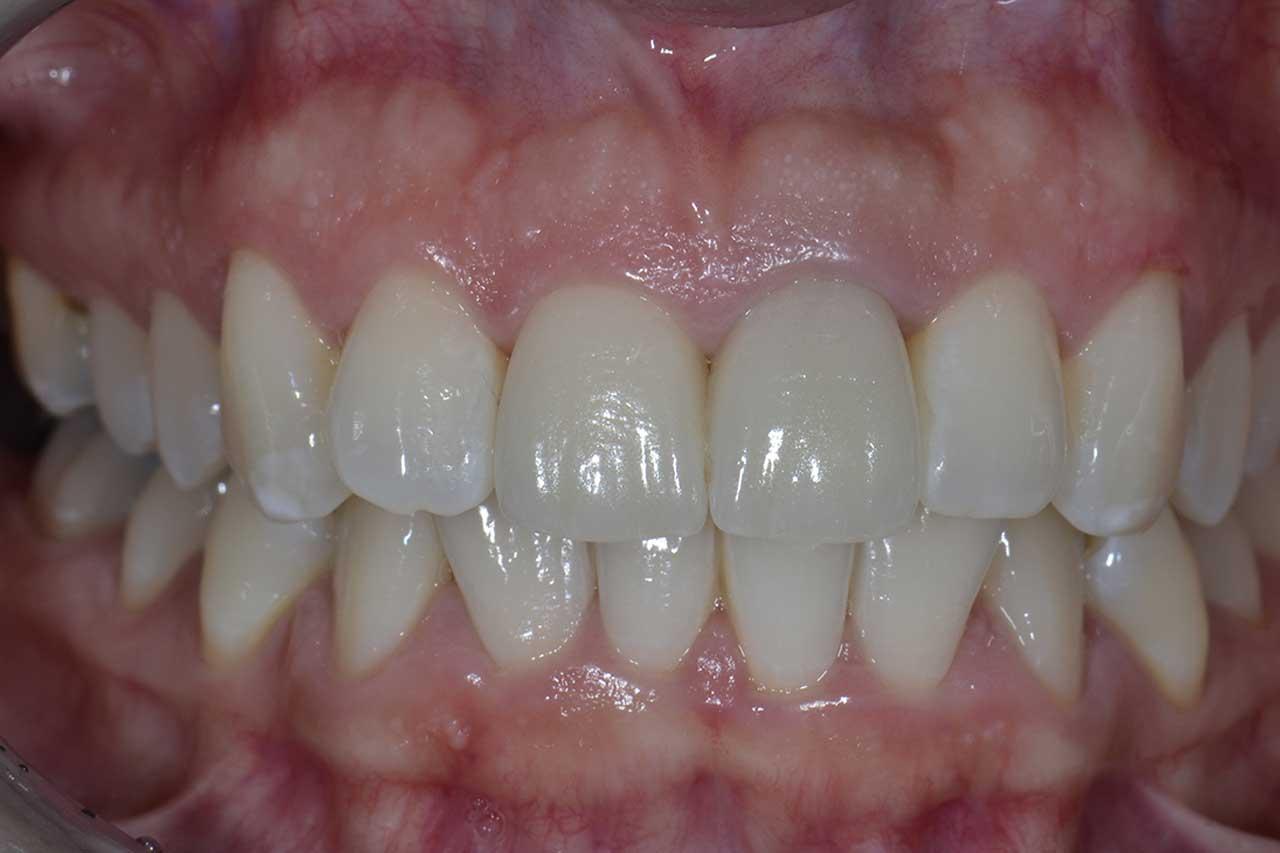 Novadent Jaroslaw Pani Sylwia po Prywatny stomatolog Jarosław | kompleksowe leczenie zębów | Implanty zębów