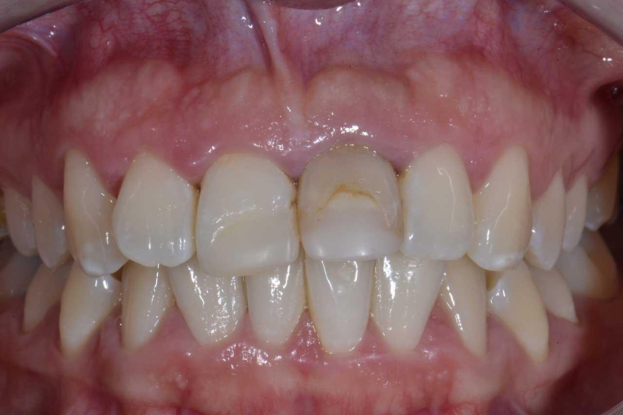 Novadent Jaroslaw Pani Sylwia przed Prywatny stomatolog Jarosław | kompleksowe leczenie zębów | Implanty zębów