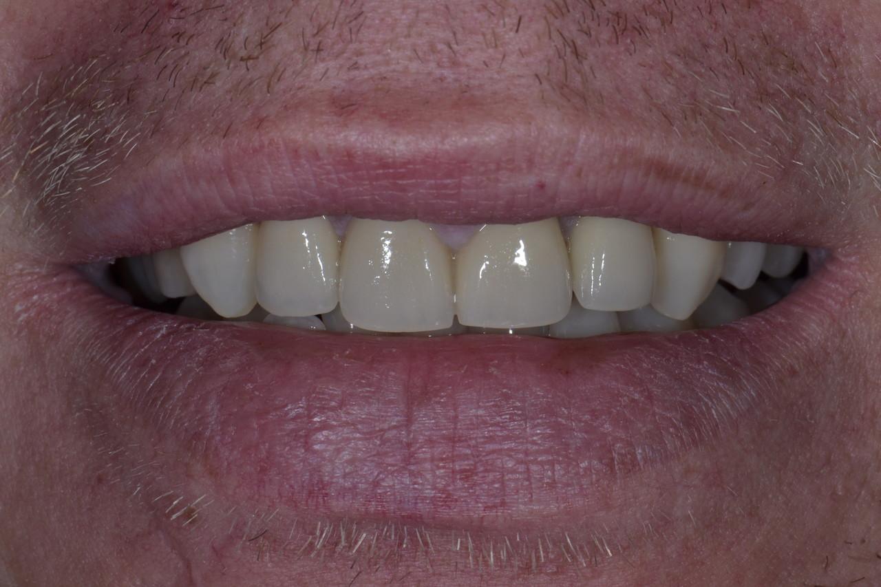 Pan Wieslaw zmniejszone po Prywatny stomatolog Jarosław | kompleksowe leczenie zębów | Implanty zębów