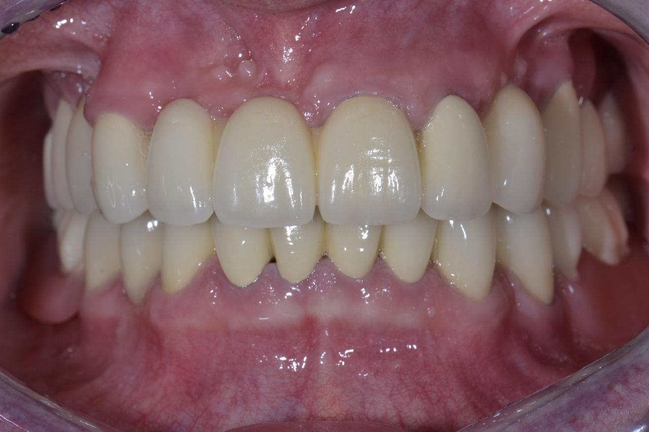 Pani Agnieszka zmniejszone 2 Prywatny stomatolog Jarosław | kompleksowe leczenie zębów | Implanty zębów