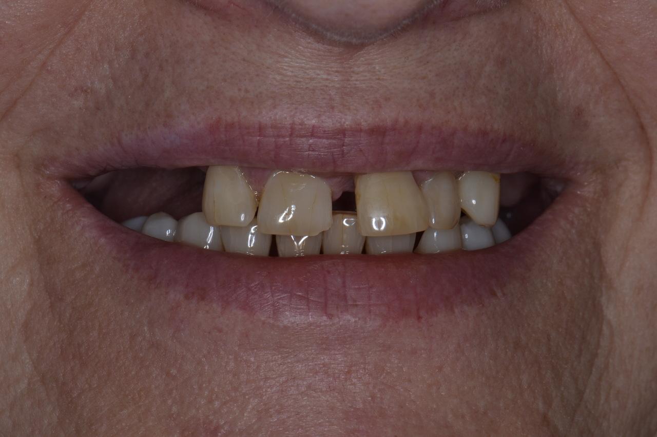Pani Barbara zmniejszone 1 Prywatny stomatolog Jarosław | kompleksowe leczenie zębów | Implanty zębów