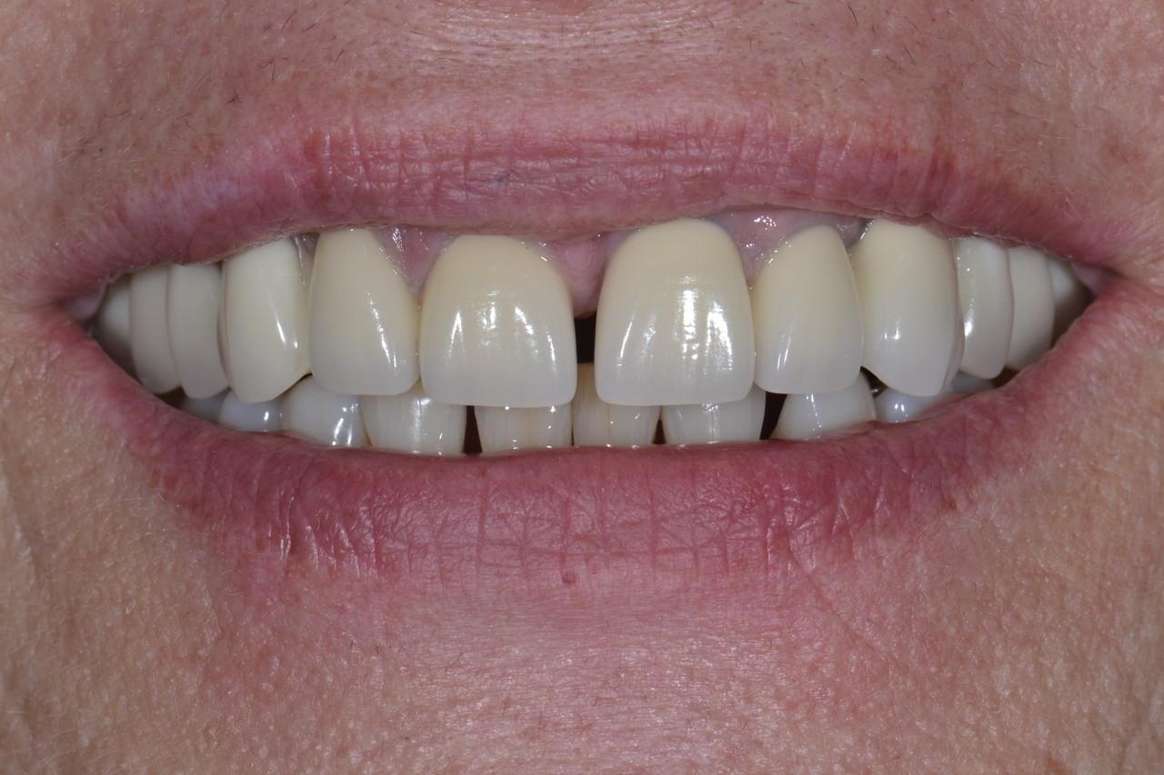Pani Barbara zmniejszone 2 Prywatny stomatolog Jarosław | kompleksowe leczenie zębów | Implanty zębów