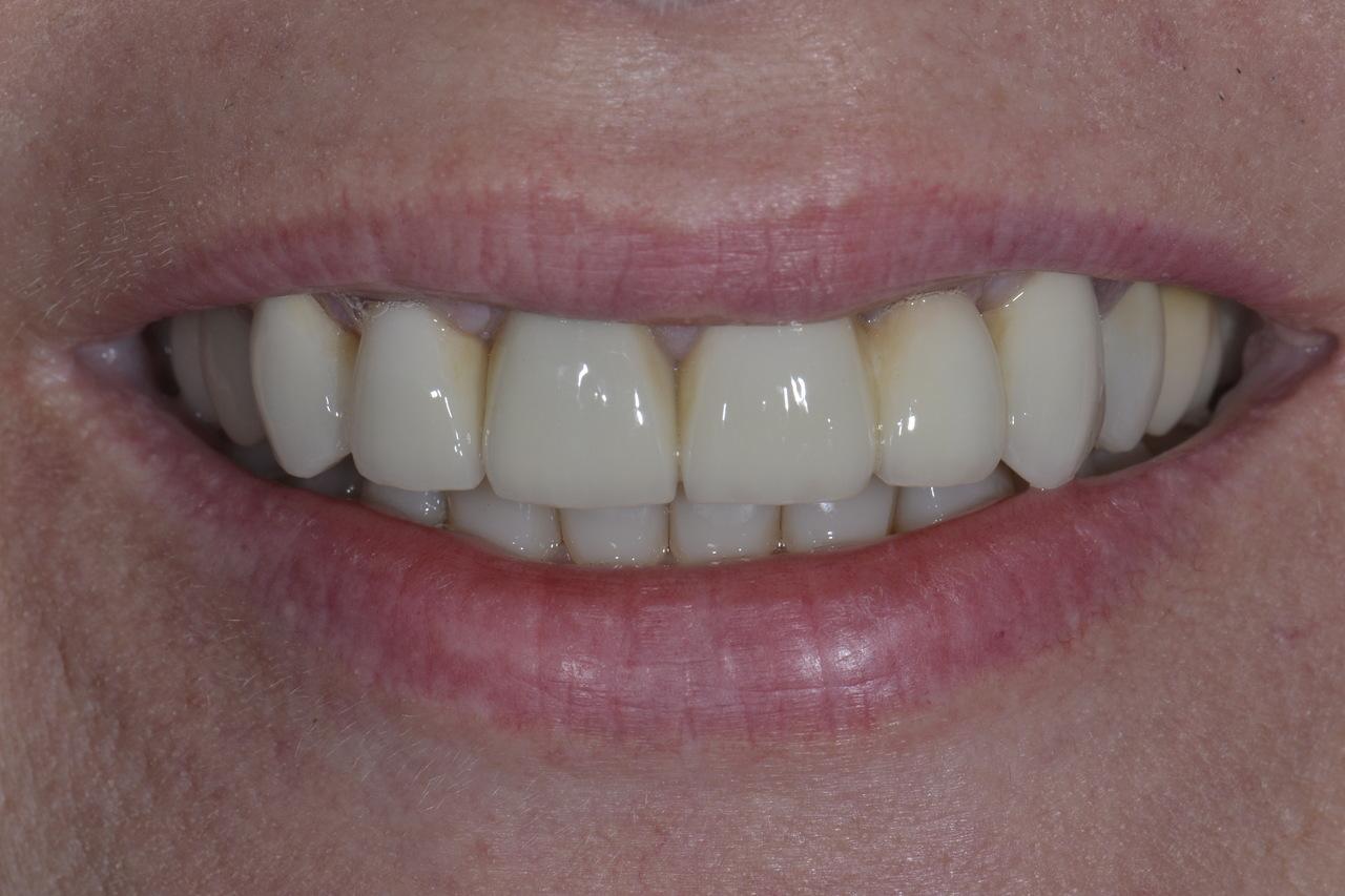 Pani Elzbieta zmniejszone 1 Prywatny stomatolog Jarosław | kompleksowe leczenie zębów | Implanty zębów