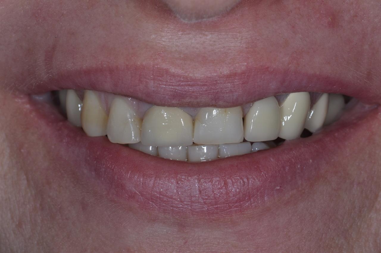 Pani Elzbieta zmniejszone 2 Prywatny stomatolog Jarosław | kompleksowe leczenie zębów | Implanty zębów