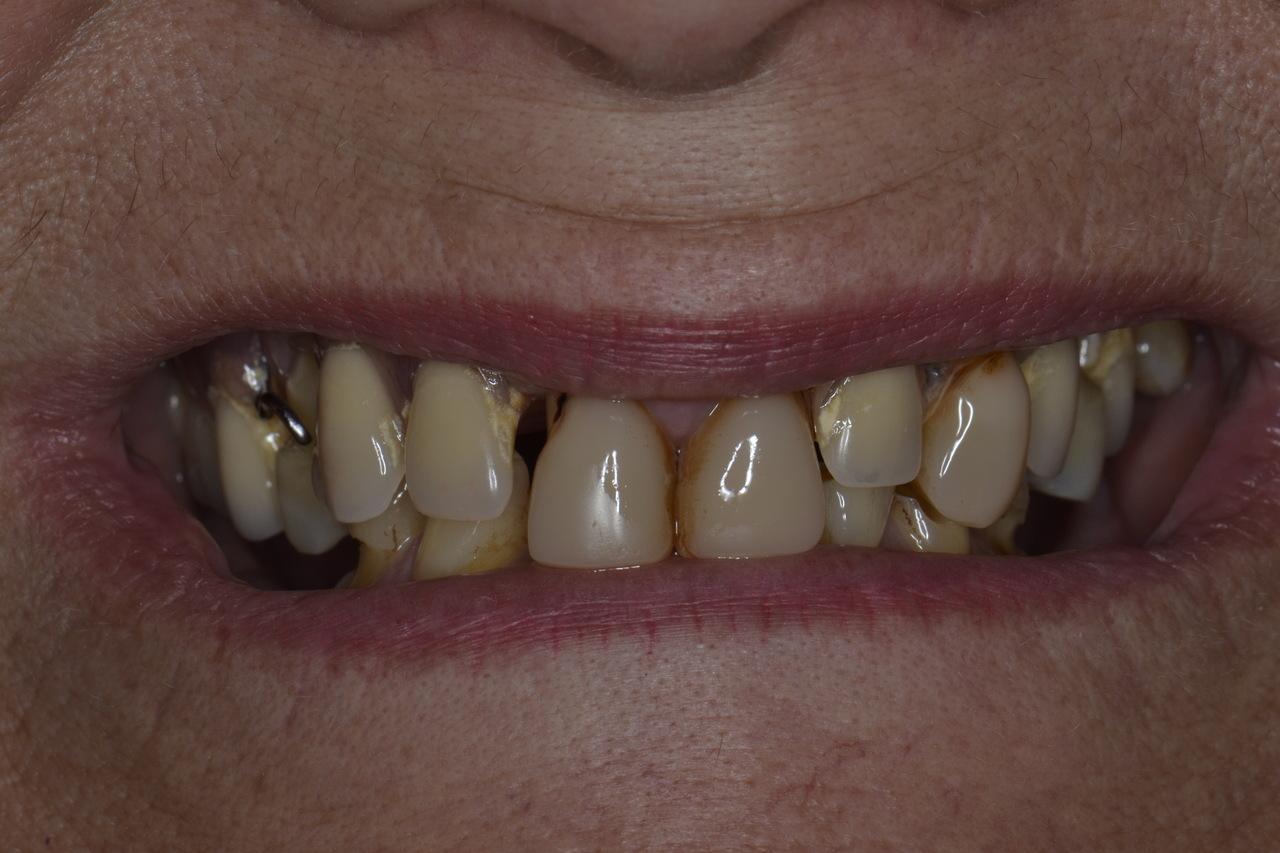 Pani Katarzyna zmniejszone zdjecia 2 Prywatny stomatolog Jarosław | kompleksowe leczenie zębów | Implanty zębów