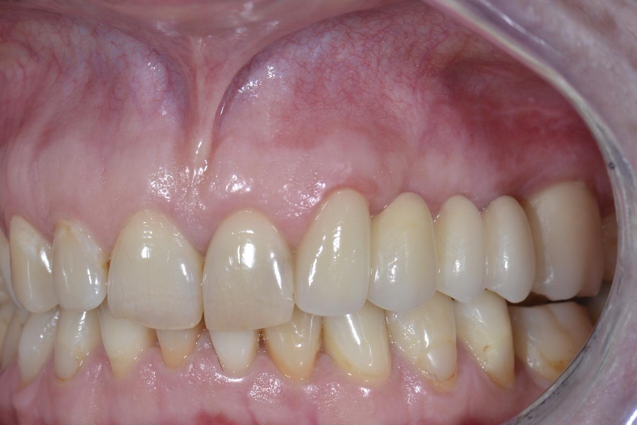 Pani Luiza zmniejszone zdjecia 2 Prywatny stomatolog Jarosław | kompleksowe leczenie zębów | Implanty zębów