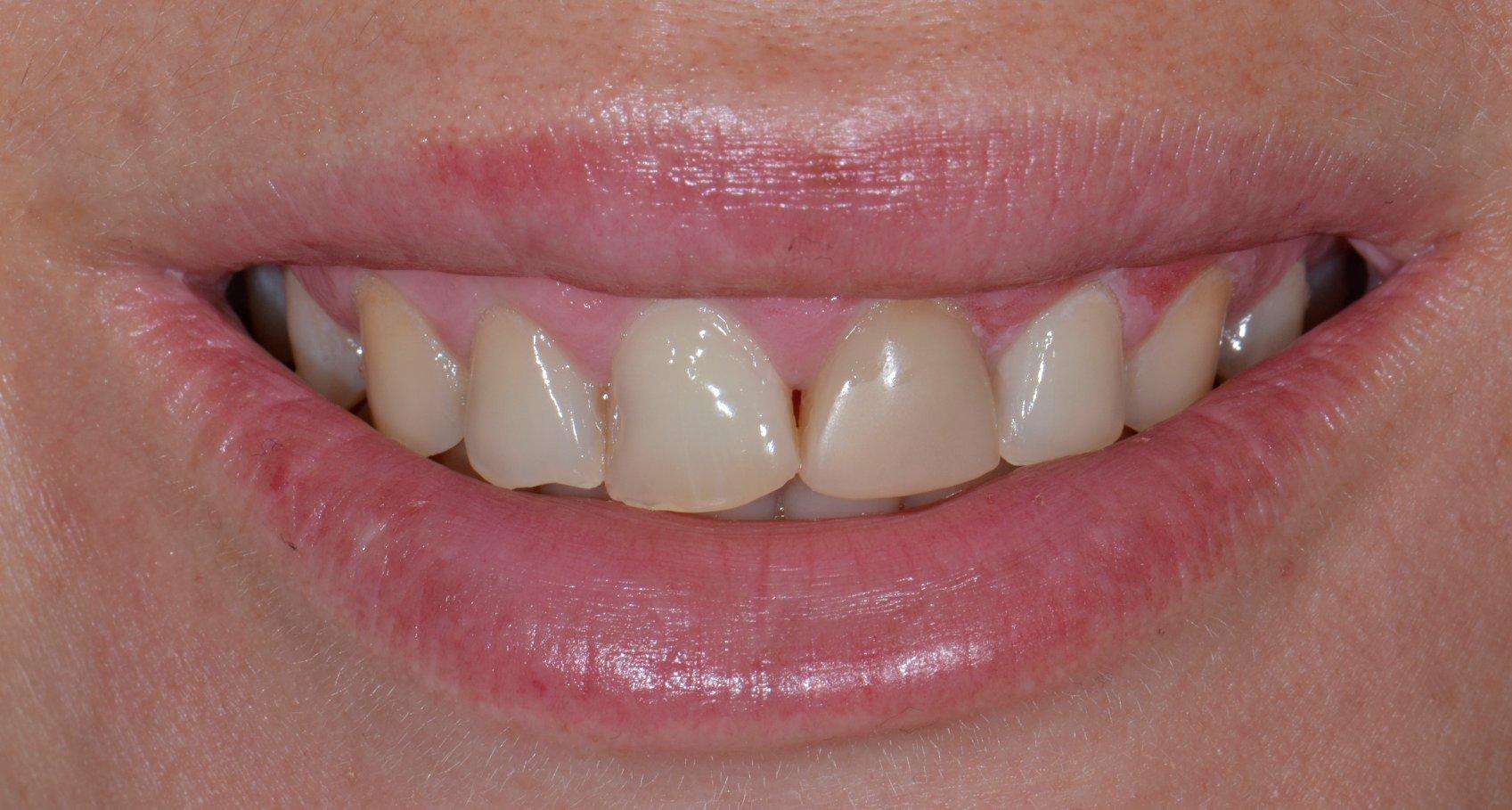 Pani Paulina zmnieszone zdjecie przed Prywatny stomatolog Jarosław | kompleksowe leczenie zębów | Implanty zębów