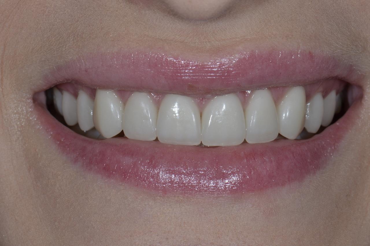 DSC0136 Easy Resize.com Prywatny stomatolog Jarosław | kompleksowe leczenie zębów | Implanty zębów
