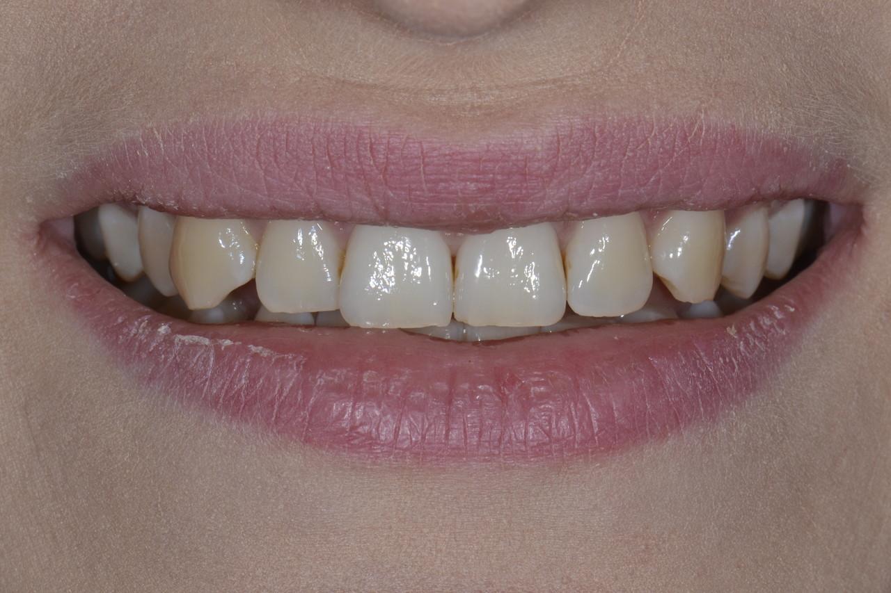 DSC0452 Easy Resize.com Prywatny stomatolog Jarosław | kompleksowe leczenie zębów | Implanty zębów
