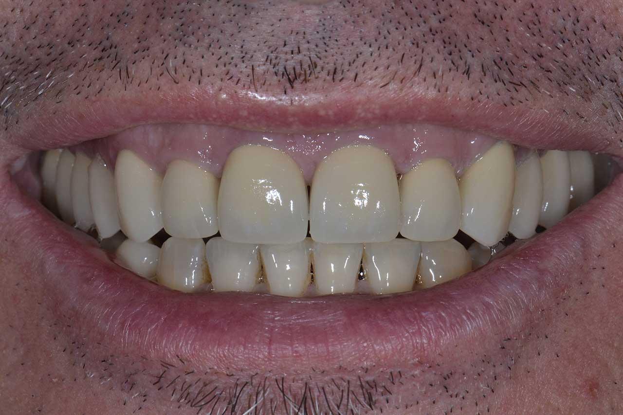 Novadent Jaroslaw Pan Witold po Prywatny stomatolog Jarosław | kompleksowe leczenie zębów | Implanty zębów