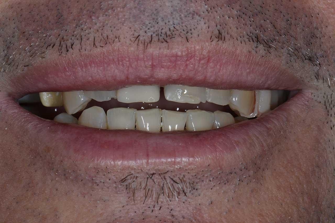Novadent Jaroslaw Pan Witold przed Prywatny stomatolog Jarosław | kompleksowe leczenie zębów | Implanty zębów